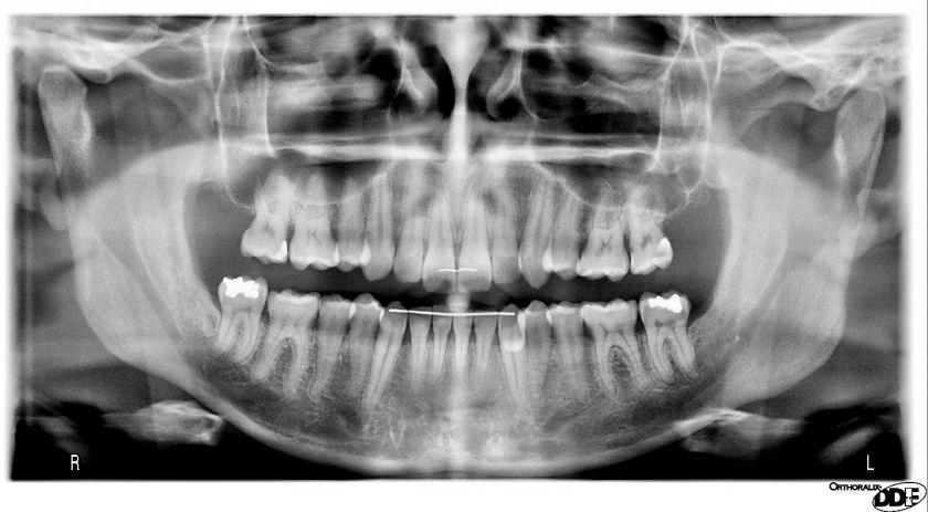 Панорамный снимок зубов в донецке